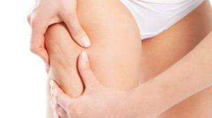 Como Eliminar a Celulite de Forma Natural e Rapidamente