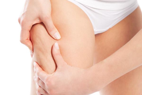 Adeus Celulite: Como Eliminar a Celulite de Forma Natural e Rapidamente!