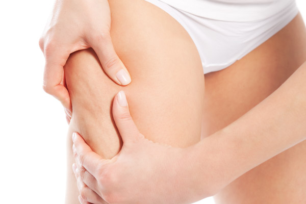 Como Eliminar a Celulite de Forma Natural e Rapidamente!
